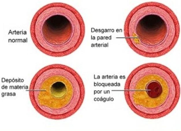 aterosclerosis 01