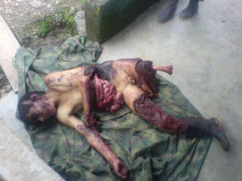 VICTIMA DE COLOMBIA FARC 02 - copia (FILEminimizer)