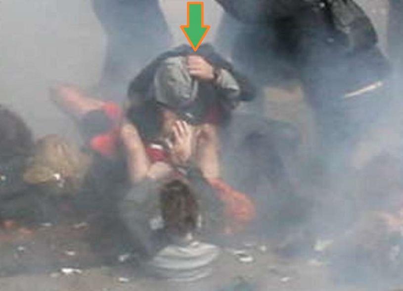 BAUMAN AFIANZANDO LA PROTESIS 00 (SECUENCIA 07) (FILEminimizer)