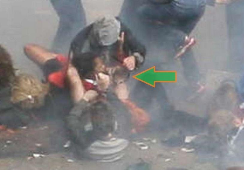 BAUMAN AFIANZANDO LA PROTESIS 01 (SECUENCIA 08) (FILEminimizer)
