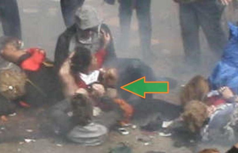 BAUMAN AFIANZANDO LA PROTESIS 03 (SECUENCIA 10) (FILEminimizer)