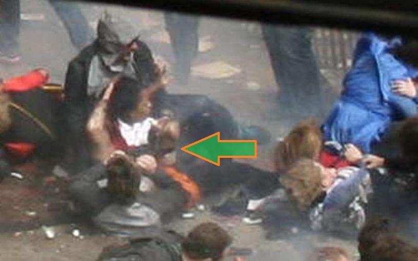 BAUMAN AFIANZANDO LA PROTESIS 04 (SECUENCIA 11) (FILEminimizer)