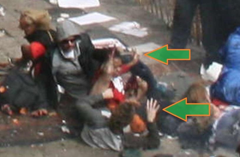 BAUMAN AFIANZANDO LA PROTESIS 05 (SECUENCIA 19) (FILEminimizer)